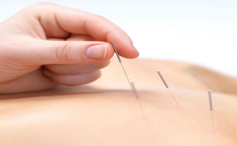 The Science of Acupuncture – Body regaining the lost energy through needles treatment