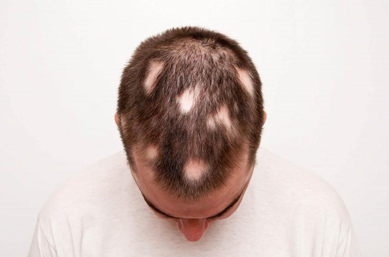 Bye, Bye Bald Spot