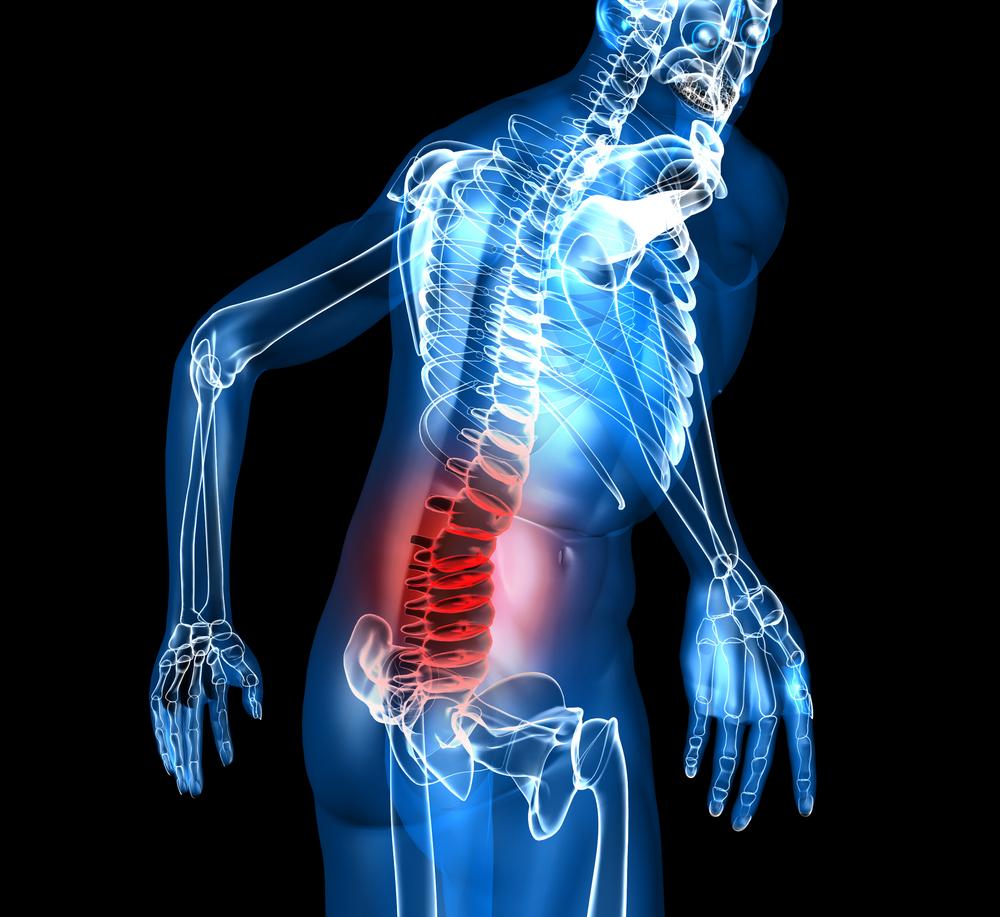 A physicians Advice on Back Pain